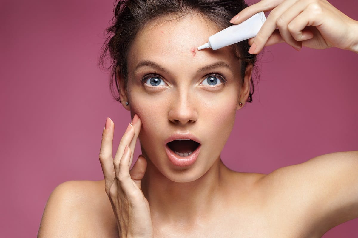 Ways to get rid of acne with home remedies